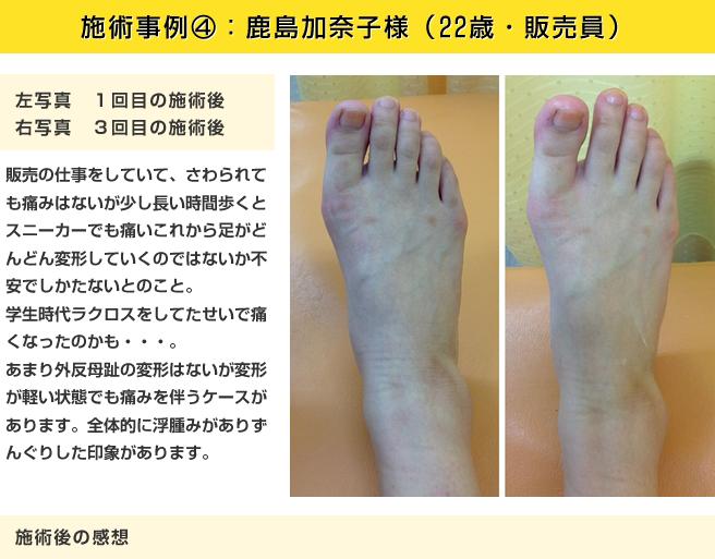 施術事例②:鹿島加奈子様(22歳・販売員)