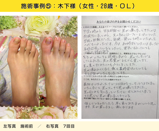 施術事例④:木下様(女性・28歳・OL)