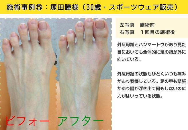 施術事例⑤:塚田瞳様(30歳・スポーツウェア販売)