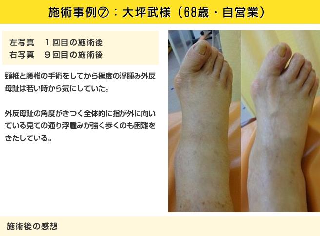 施術事例⑥:大坪武様(68歳・自営業)